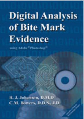 Digital analysis of Bitemark evidence BowersJPG